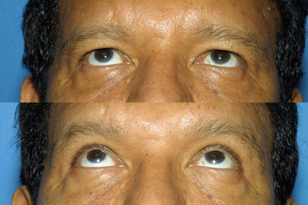 Blepharoplasty for Nova, (20200720150715461) 20200720150827632