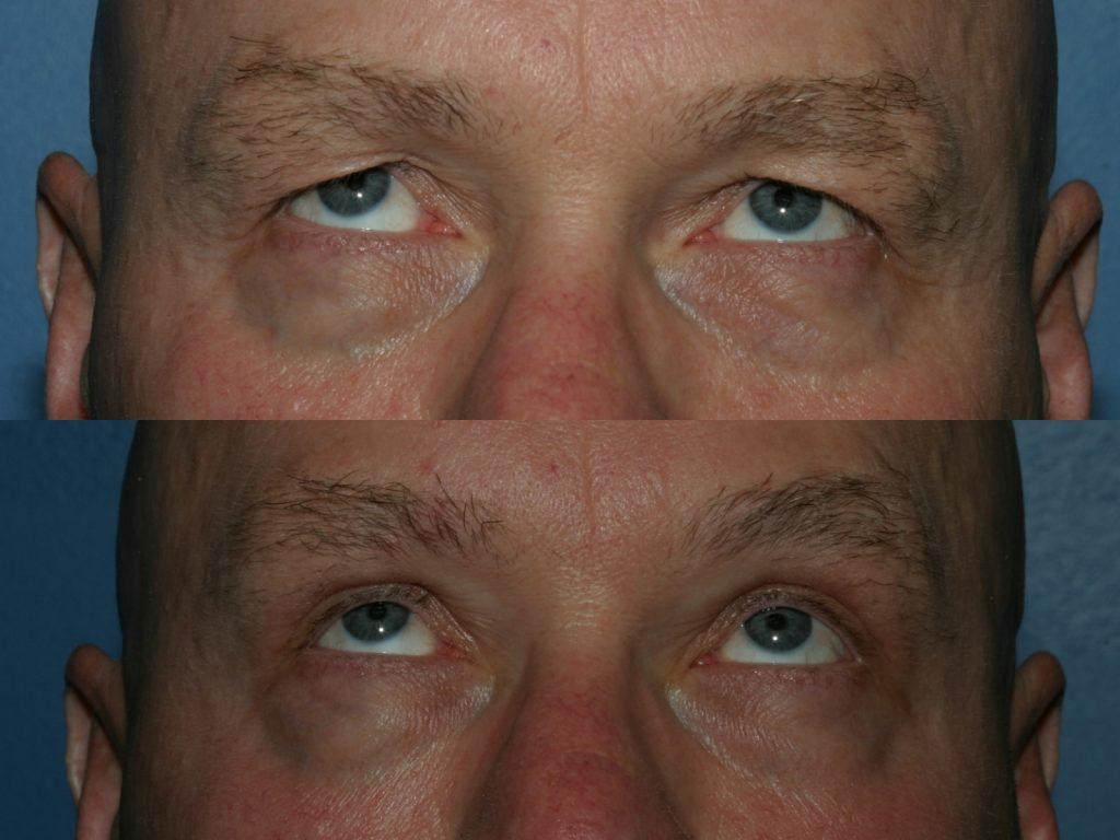 Blepharoplasty for Nova, (20200720150715461) 20200720150832206