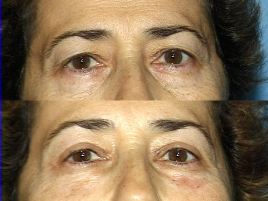 Blepharoplasty for Nova, (20200720150715461) 20200720150834363