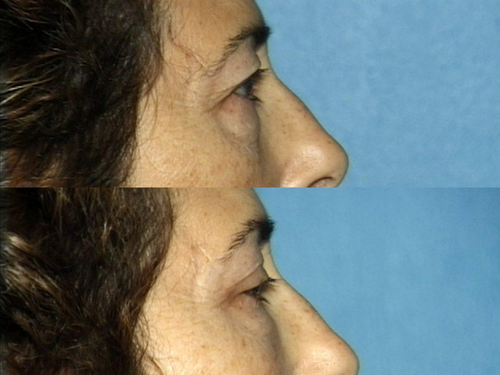 Blepharoplasty for Nova, (20200720150715461) 20200720150835037