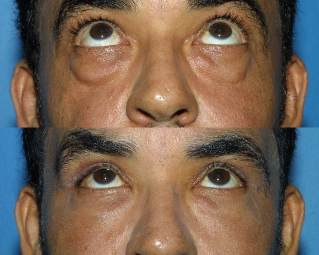 Blepharoplasty for Nova, (20200720150715461) 20200720151020362