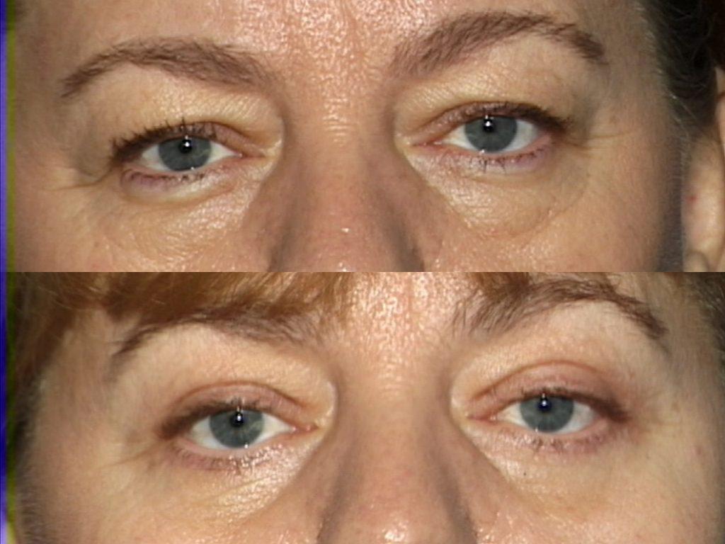 Blepharoplasty for Nova, (20200720150715461) 20200720151245051