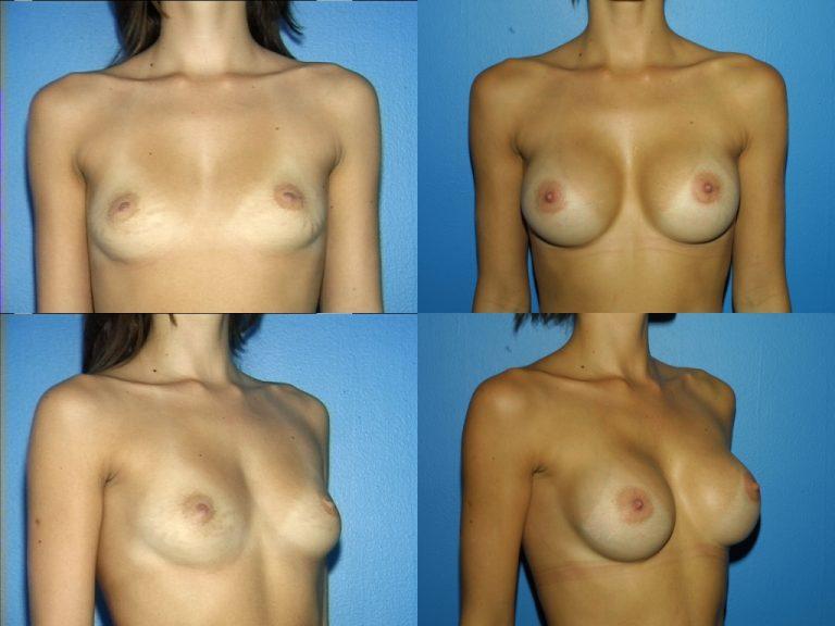 Breast Augmentation, (19990222164204765) 20040130145049399