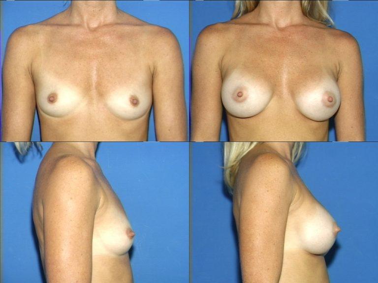 Breast Augmentation, (19990222164204765) 20040316114138938