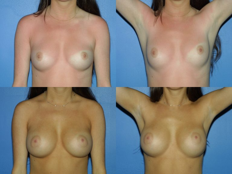 Breast Augmentation, (19990222164204765) 20130302132728119