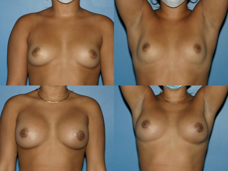 Breast Augmentation (20200513143046608) 20200716124223972